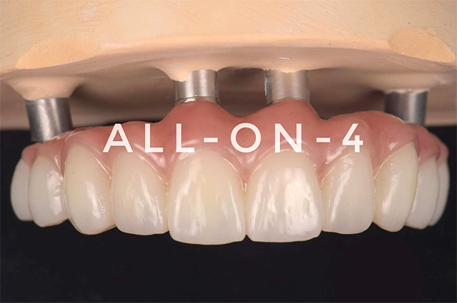 All-on-4(オールオン4)のメリット