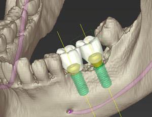 骨を増やしてインプラント治療を可能に