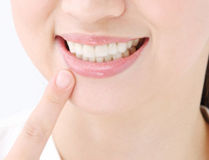 前歯でお悩みの方にも対応