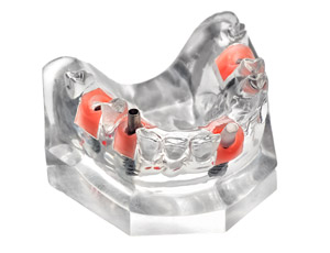 口腔インプラント